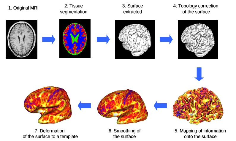 Topology correction of brain surfaces